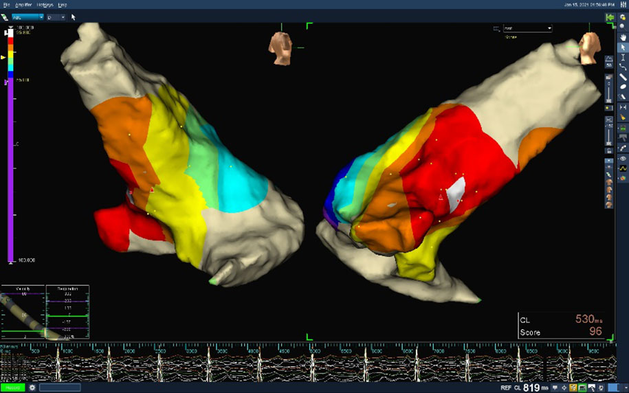 The heart is simulated via 3D mapping to ensure accurate location of the ventricular external systole